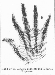 Illustration of Pofessor McKissick's xray photo of a student's hand in Atlanta Constitution Feb. 16, 1896 pg. 19